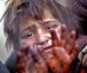 niño pobreza hambre